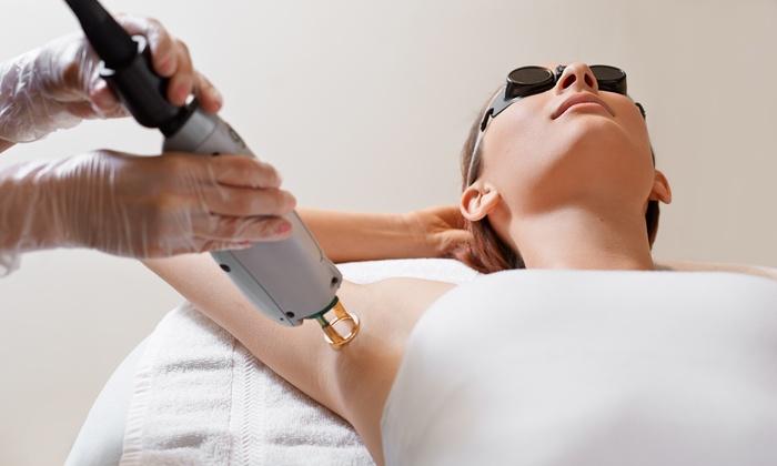arizona laser hair removal