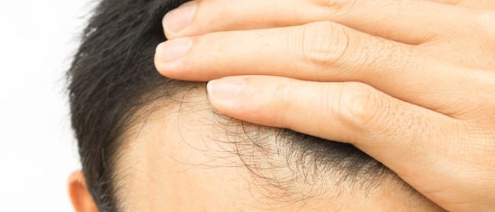 Hair Loss Treatments - 8 Natural Ones to Regrow Hair Fast
