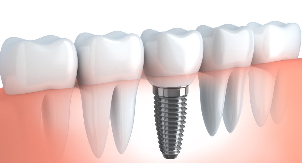 How Do You Prepare for a Tooth Implant