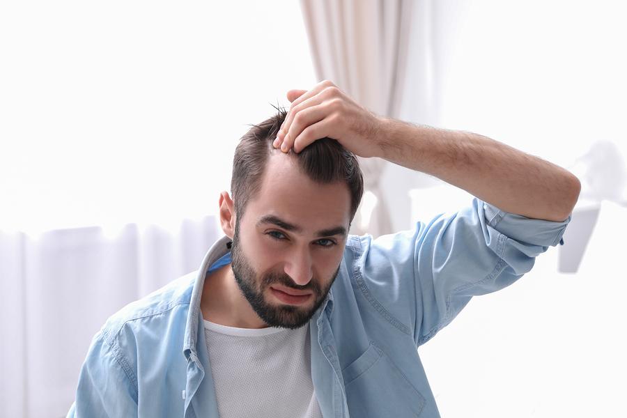 Female Hair Transplantation to Prevent Hair Loss