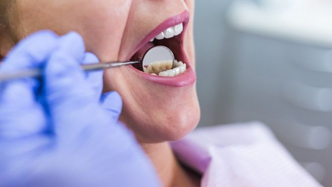 Wisdom Tooth - Reasons Why You Need To Have It Removed